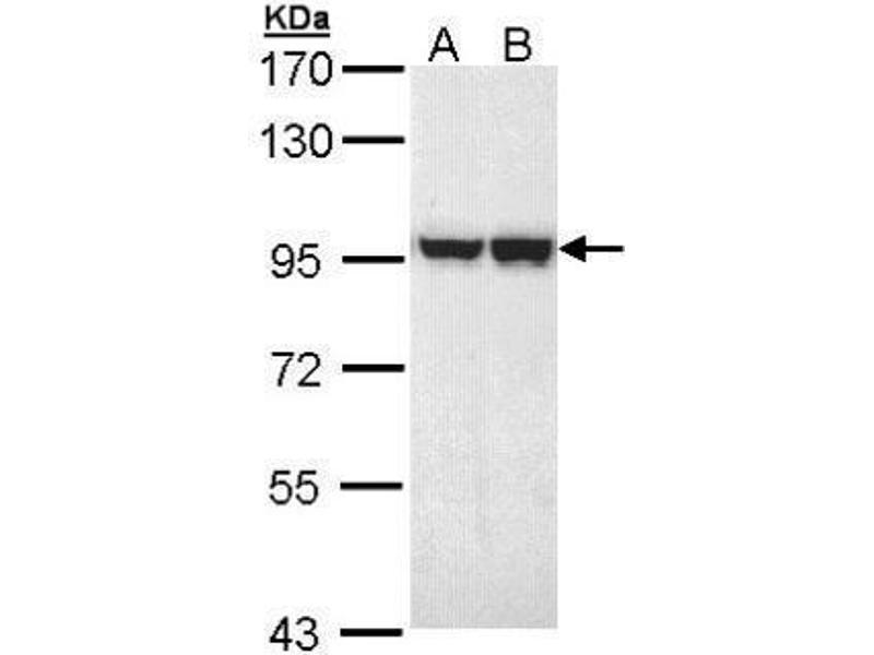 Western Blotting (WB) image for anti-MALT1 antibody (Mucosa Associated Lymphoid Tissue Lymphoma Translocation Gene 1) (ABIN2445264)