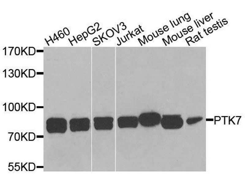 Western Blotting (WB) image for anti-PTK7 Protein tyrosine Kinase 7 (PTK7) antibody (ABIN6146429)