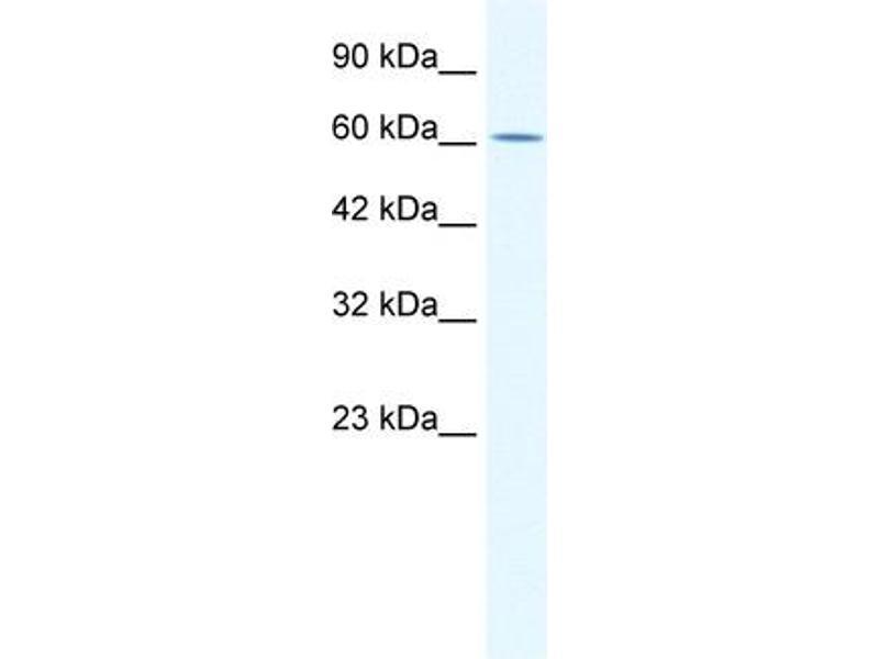 Western Blotting (WB) image for anti-Zinc Finger Protein 182 (ZNF182) (Middle Region) antibody (ABIN2777980)