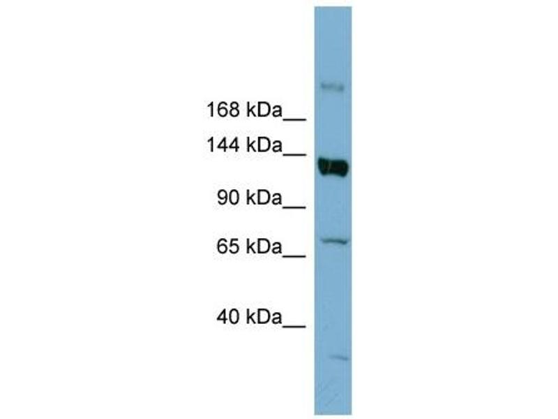 Western Blotting (WB) image for anti-ATP-Binding Cassette, Sub-Family B (MDR/TAP), Member 4 (ABCB4) (Middle Region) antibody (ABIN2776967)