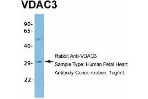Image no. 5 for anti-Voltage-Dependent Anion Channel 3 (VDAC3) (N-Term) antibody (ABIN2776182)