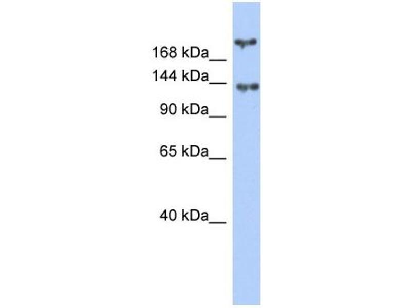 Western Blotting (WB) image for anti-Breast Cancer 1 (BRCA1) (Middle Region) antibody (ABIN2777874)