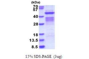 Image no. 1 for Pregnancy Specific beta-1-Glycoprotein 1 (PSG1) (AA 35-419) protein (His tag) (ABIN5853705)
