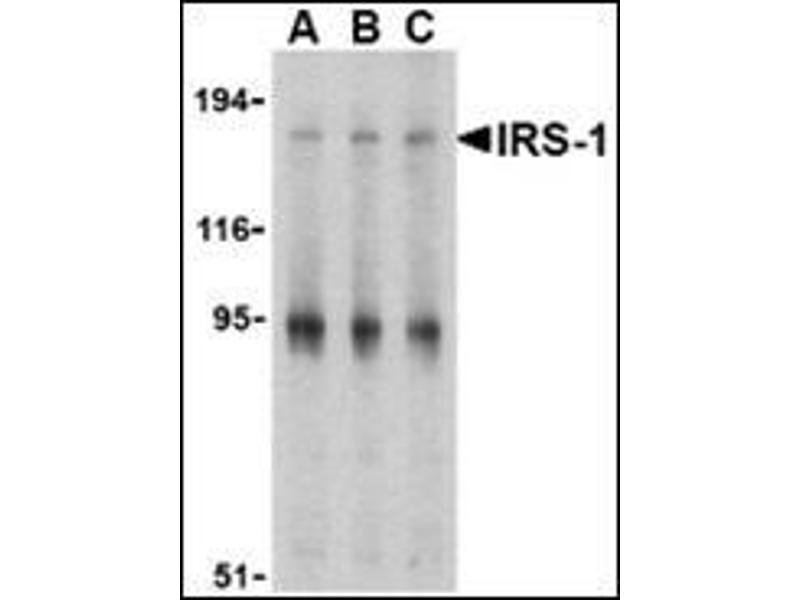 Western Blotting (WB) image for anti-Insulin Receptor Substrate 1 (IRS1) (Center) antibody (ABIN500072)