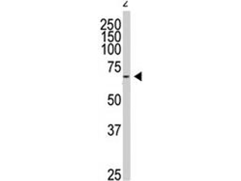 Western Blotting (WB) image for anti-G Protein-Coupled Receptor Kinase 6 (GRK6) antibody (ABIN545444)