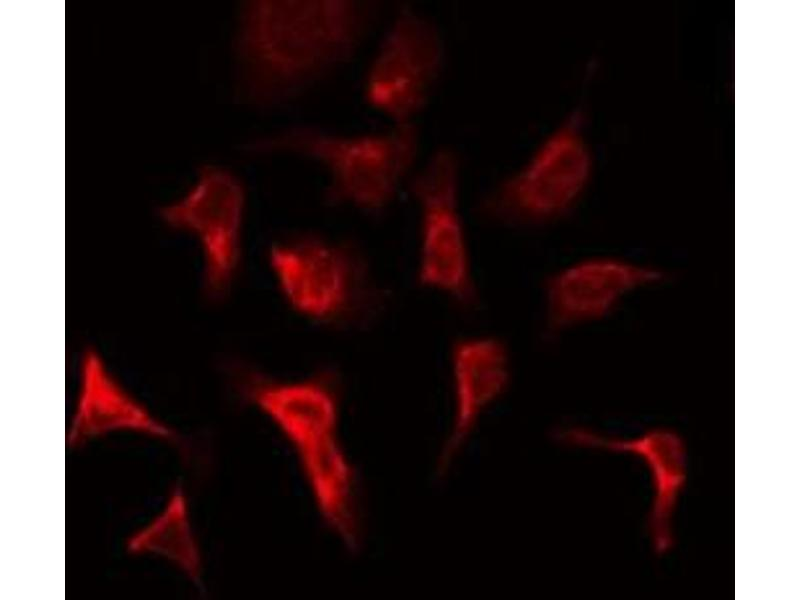 Immunofluorescence (fixed cells) (IF/ICC) image for anti-Fibroblast Growth Factor Receptor 1 (FGFR1) antibody (ABIN6261731)