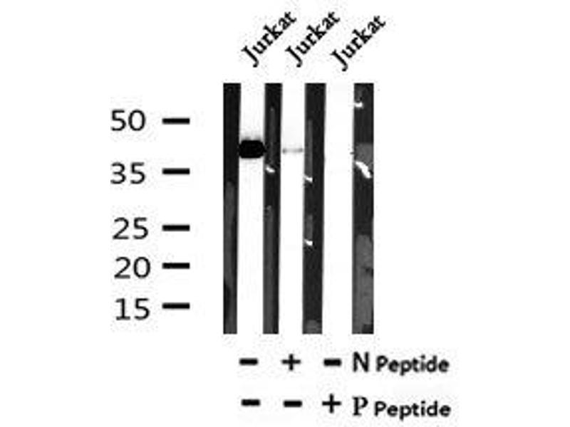 Image no. 2 for anti-ATG3 Autophagy Related 3 Homolog (S. Cerevisiae) (ATG3) (pTyr18) antibody (ABIN6269591)