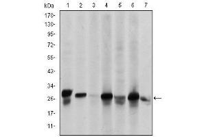 Image no. 6 for anti-Heat Shock 27kDa Protein 2 (HSPB2) antibody (ABIN1498733)