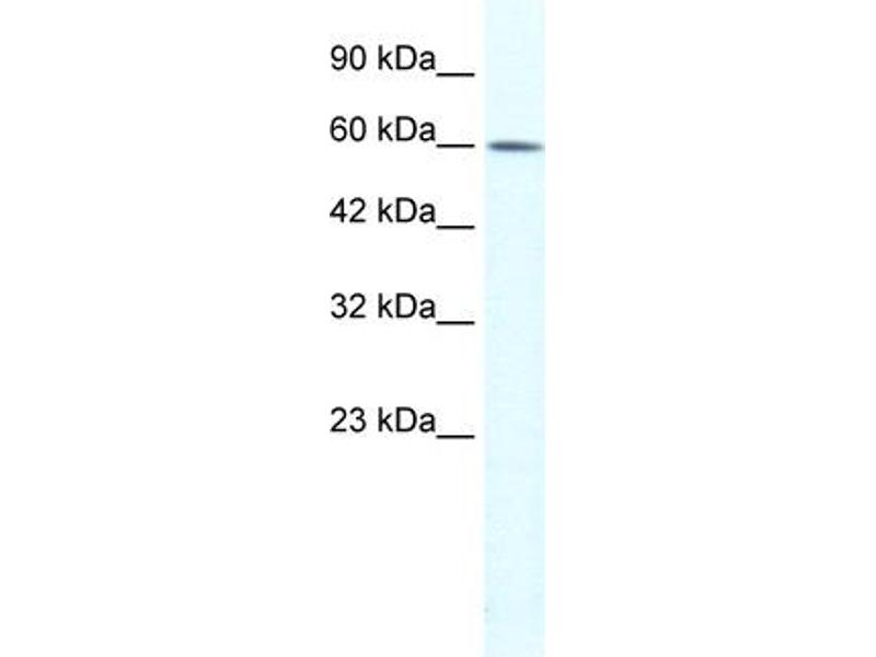 Western Blotting (WB) image for anti-Tripartite Motif Containing 3 (TRIM3) (N-Term) antibody (ABIN183068)