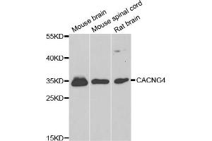 Image no. 1 for anti-Calcium Channel, Voltage-Dependent, gamma Subunit 4 (CACNG4) antibody (ABIN6291851)