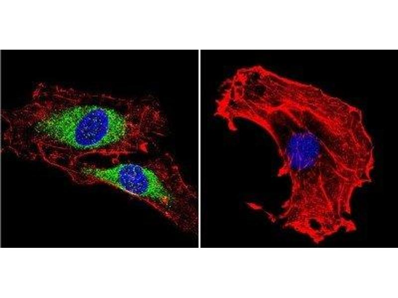Immunofluorescence (IF) image for anti-Vimentin (VIM) antibody (ABIN261651)