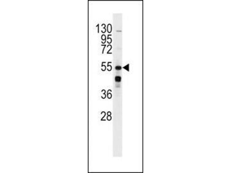 Image no. 1 for anti-Phosphinothricin N-Acetyltransferase (BAR2) (AA 236-264) antibody (ABIN3170509)