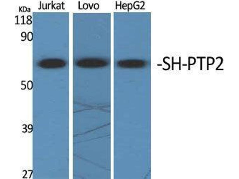 Western Blotting (WB) image for anti-PTPN11 Antikörper (Protein tyrosine Phosphatase, Non-Receptor Type 11) (Internal Region) (ABIN3186955)