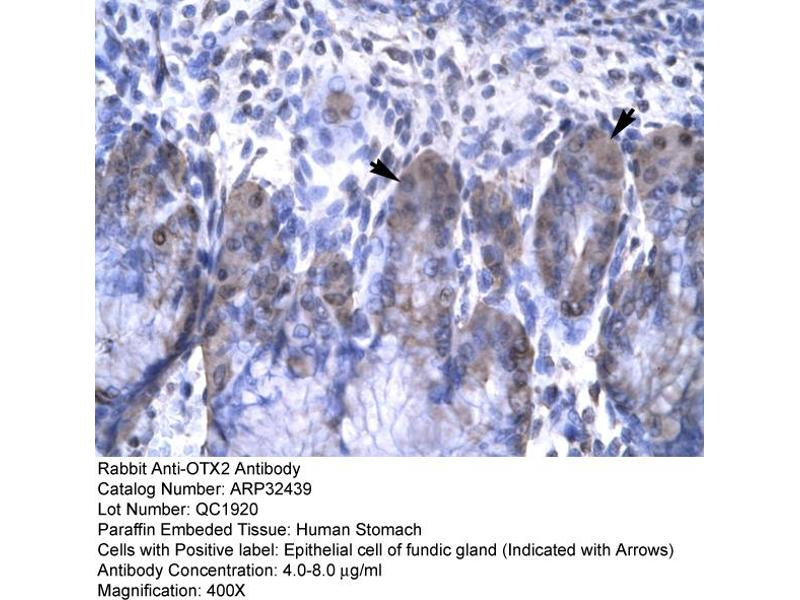 Immunohistochemistry (IHC) image for anti-Orthodenticle Homeobox 2 (OTX2) (N-Term) antibody (ABIN182571)