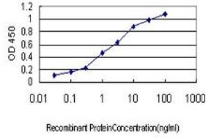 Image no. 1 for anti-Angiotensin I Converting Enzyme (Peptidyl-Dipeptidase A) 1 (ACE) (AA 592-701) antibody (ABIN560577)