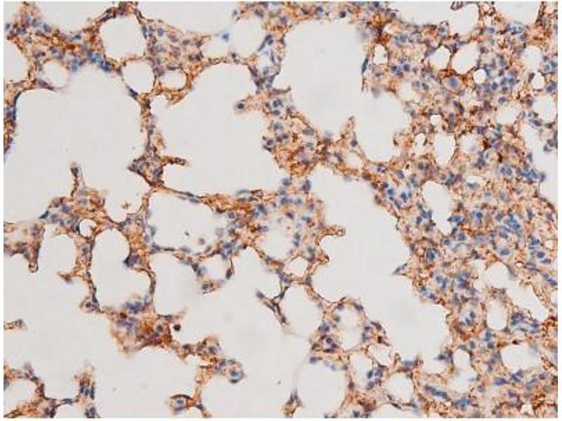 Immunohistochemistry (IHC) image for anti-GATA Binding Protein 4 (GATA4) (pSer105) antibody (ABIN6256094)