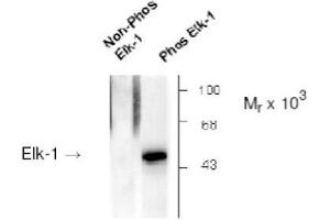 image for anti-ELK1, Member of ETS Oncogene Family (ELK1) (pSer383) antibody (ABIN265095)