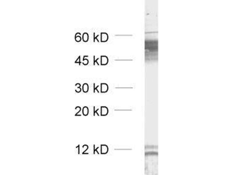Western Blotting (WB) image for anti-gamma-aminobutyric Acid (GABA) A Receptor, beta 2 (GABRB2) (AA 343-430) antibody (ABIN1742467)