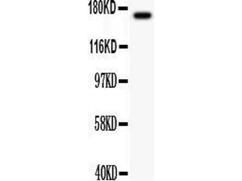 Western Blotting (WB) image for anti-Mitogen-Activated Protein Kinase Kinase Kinase 1 (MAP3K1) (AA 1418-1432), (C-Term) antibody (ABIN3044007)