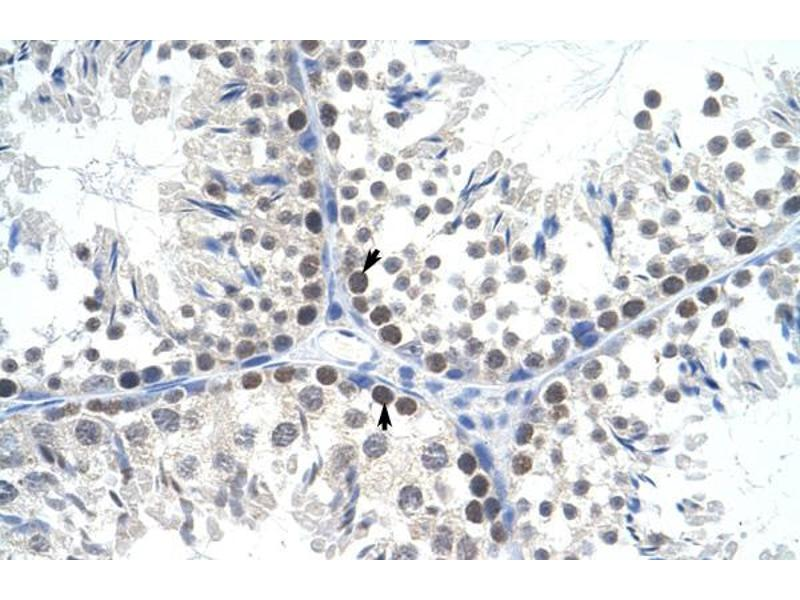 Immunohistochemistry (IHC) image for anti-Transcription Factor A, Mitochondrial (TFAM) (C-Term) antibody (ABIN2779903)