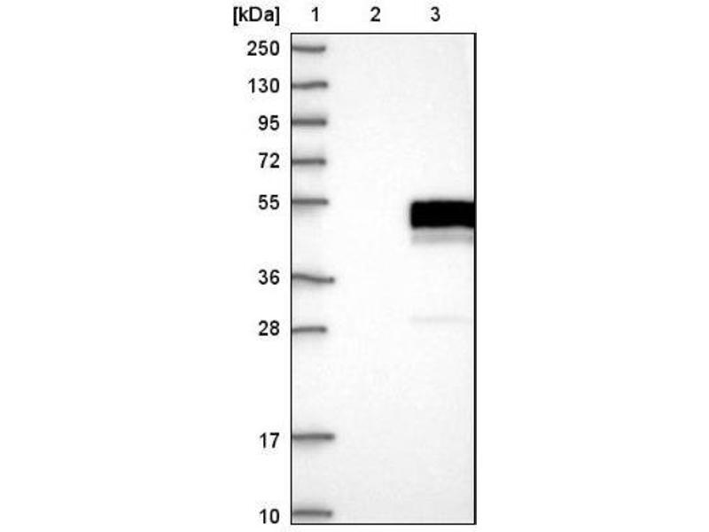 Western Blotting (WB) image for anti-Mitogen-Activated Protein Kinase Kinase 5 (MAP2K5) antibody (ABIN4333506)