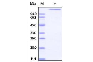 Image no. 1 for Jagged 1 (JAG1) (AA 34-1046) protein (His tag) (ABIN2181410)