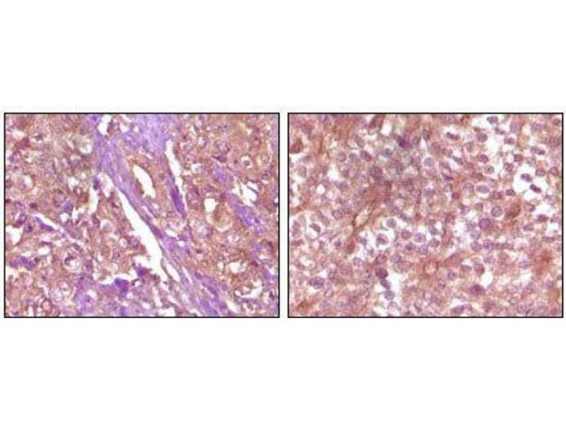 Immunohistochemistry (IHC) image for anti-EPH Receptor B4 antibody (EPHB4) (ABIN969107)