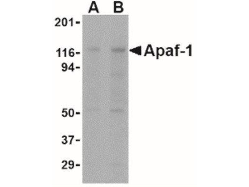 Western Blotting (WB) image for anti-APAF1 antibody (Apoptotic Peptidase Activating Factor 1) (ABIN4280958)
