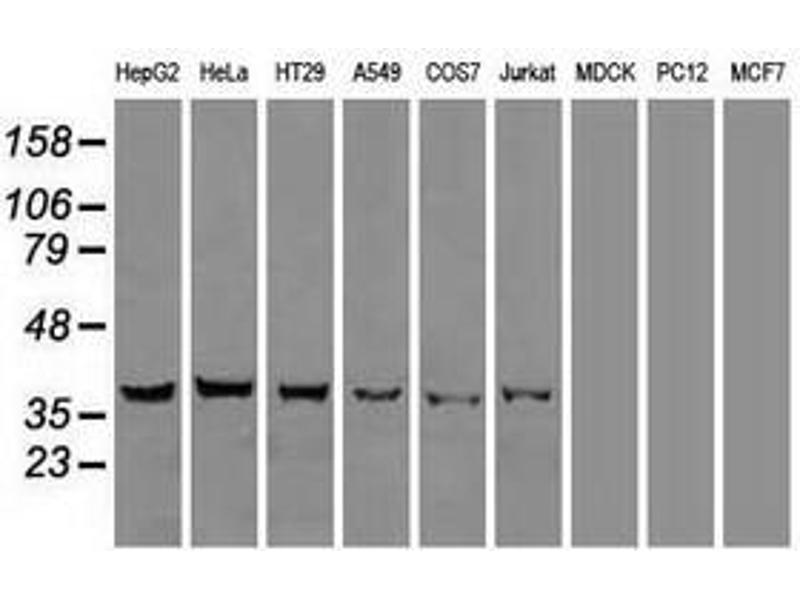 image for anti-DNA Fragmentation Factor, 45kDa, alpha Polypeptide (DFFA) antibody (ABIN1498772)