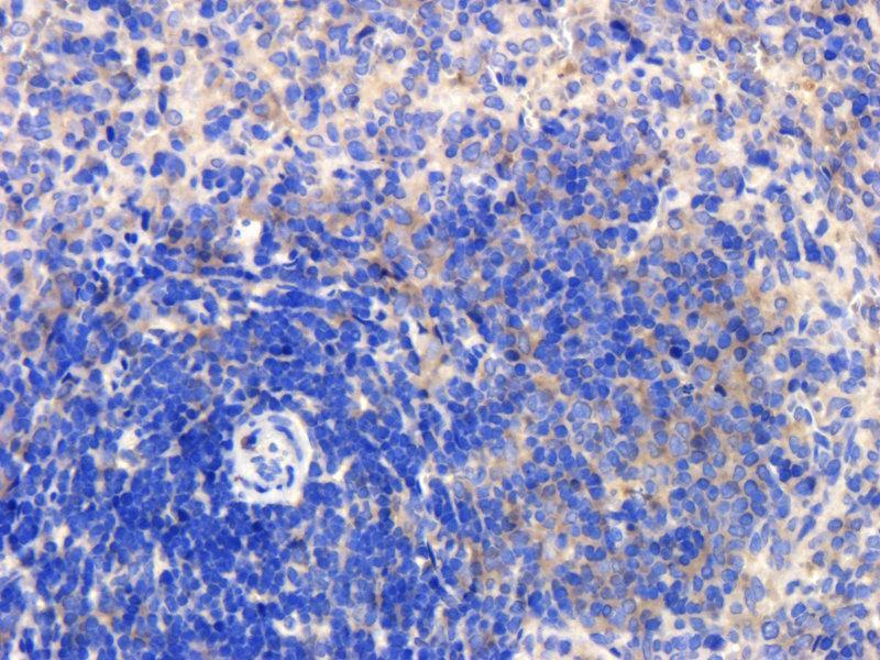 Immunohistochemistry (Paraffin-embedded Sections) (IHC (p)) image for anti-TNFRSF1A antibody (Tumor Necrosis Factor Receptor Superfamily, Member 1A) (ABIN2506679)