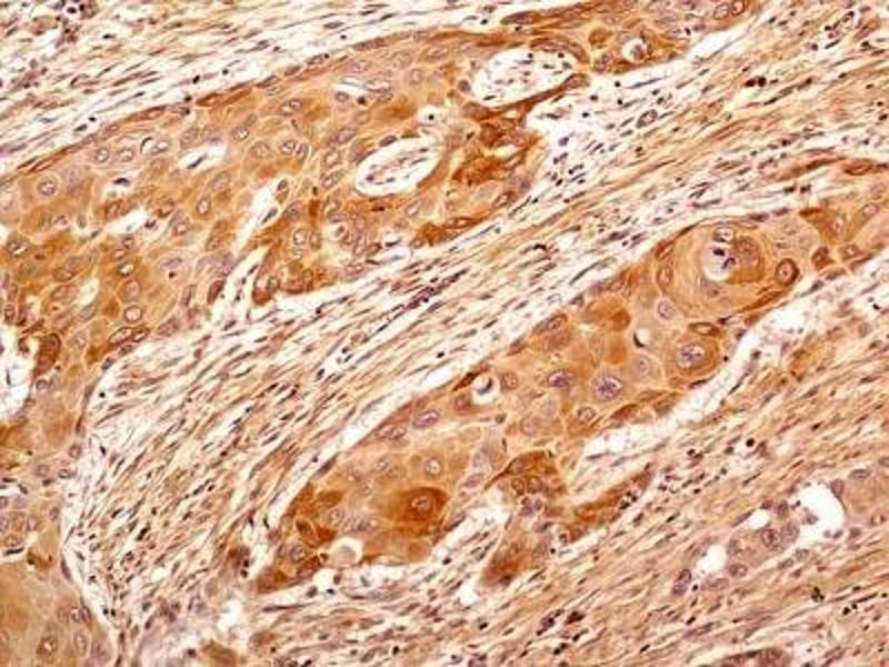 Immunohistochemistry (Paraffin-embedded Sections) (IHC (p)) image for anti-TUBB antibody (Tubulin, beta) (N-Term) (ABIN269948)