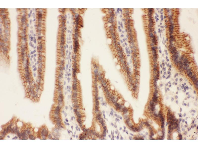 Immunohistochemistry (IHC) image for anti-Fas Ligand (TNF Superfamily, Member 6) (FASL) (AA 128-279) antibody (ABIN3043828)