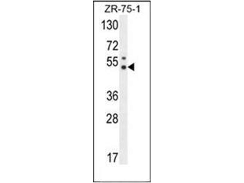 Western Blotting (WB) image for anti-PUS3 antibody (Pseudouridylate Synthase 3) (AA 38-68) (ABIN954389)