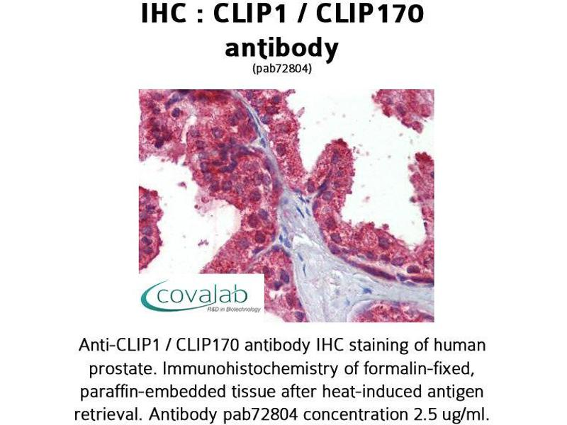 image for anti-CAP-GLY Domain Containing Linker Protein 1 (CLIP1) (C-Term) antibody (ABIN1733158)