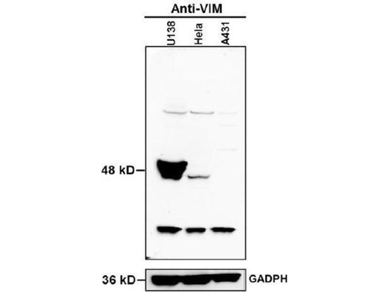 Western Blotting (WB) image for anti-Vimentin antibody (VIM) (AA 416-466) (ABIN672786)