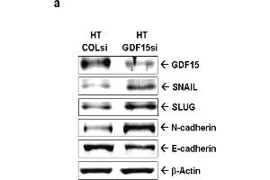 Image no. 1 for anti-Growth Differentiation Factor 15 (GDF15) antibody (ABIN3020659)
