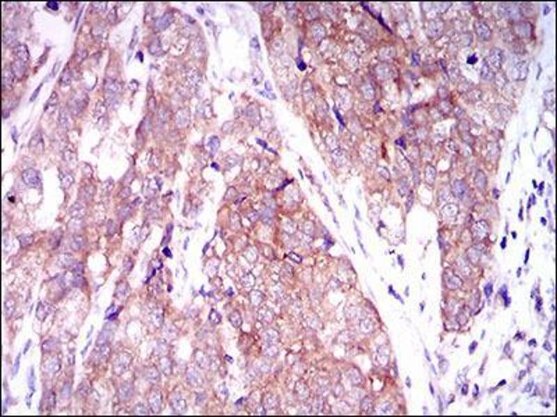 Image no. 2 for anti-MAP/microtubule Affinity-Regulating Kinase 3 (MARK3) (AA 435-658) antibody (ABIN1098125)