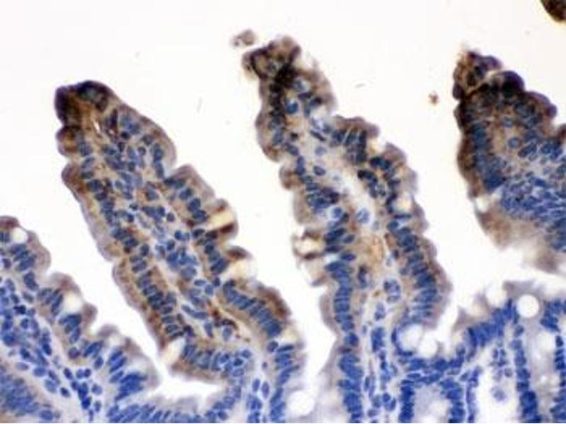 Image no. 2 for anti-FABP2 (Intestinal) antibody (ABIN4950974)