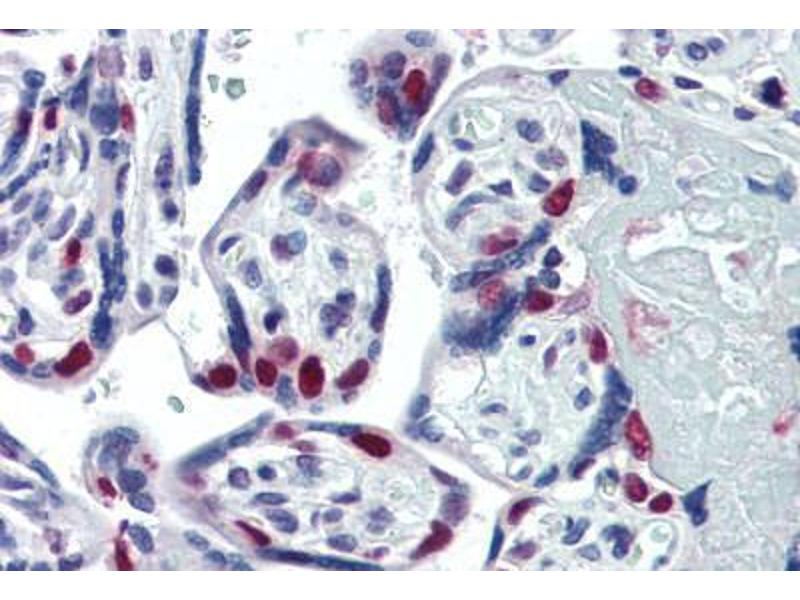 Immunohistochemistry (Paraffin-embedded Sections) (IHC (p)) image for anti-Poly (ADP-Ribose) Polymerase 1 (PARP1) antibody (ABIN462120)
