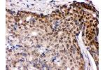 Immunohistochemistry (IHC) image for anti-Interferon Regulatory Factor 5 (IRF5) (AA 442-472), (C-Term) antibody (ABIN3043861)