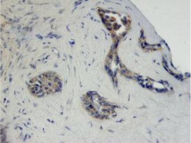 Immunohistochemistry (IHC) image for anti-Fibroblast Growth Factor Receptor 2 (FGFR2) antibody (ABIN4900757)