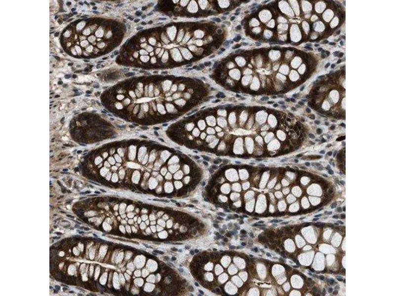 Image no. 2 for anti-NudC Domain Containing 3 (NUDCD3) antibody (ABIN4341091)