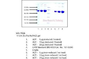 Image no. 1 for Angiotensinogen (serpin Peptidase Inhibitor, Clade A, Member 8) (AGT) protein (ABIN3119643)