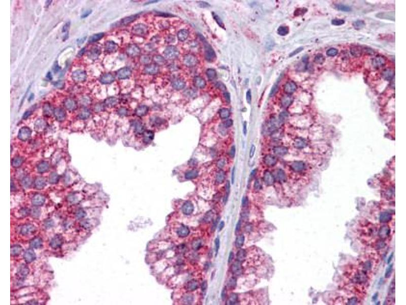 Immunohistochemistry (IHC) image for anti-Signal Transducer and Activator of Transcription 6, Interleukin-4 Induced (STAT6) (C-Term) antibody (ABIN2777200)