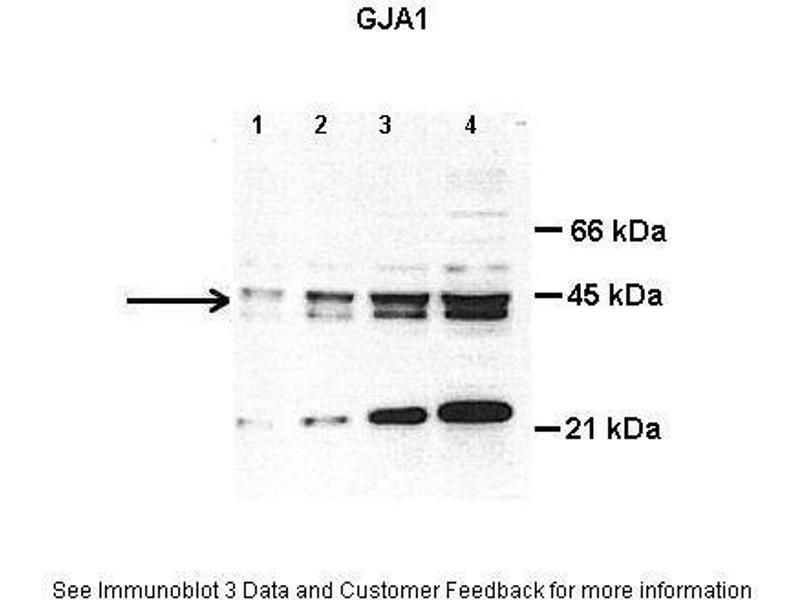 Western Blotting (WB) image for anti-Gap Junction Protein, alpha 1, 43kDa (GJA1) (Middle Region) antibody (ABIN2774852)