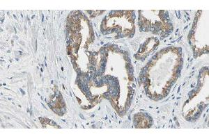 Image no. 3 for anti-Carbonic Anhydrase I (CA1) antibody (ABIN6260376)