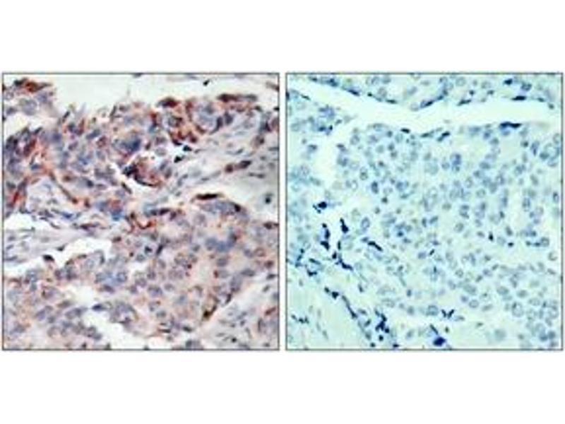 Immunohistochemistry (IHC) image for anti-Janus Kinase 2 (JAK2) (AA 191-240), (pTyr221) antibody (ABIN1531883)