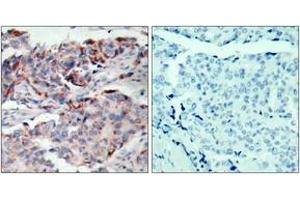 Immunohistochemistry (IHC) image for anti-JAK2 antibody (Janus Kinase 2) (pTyr221) (ABIN1531883)