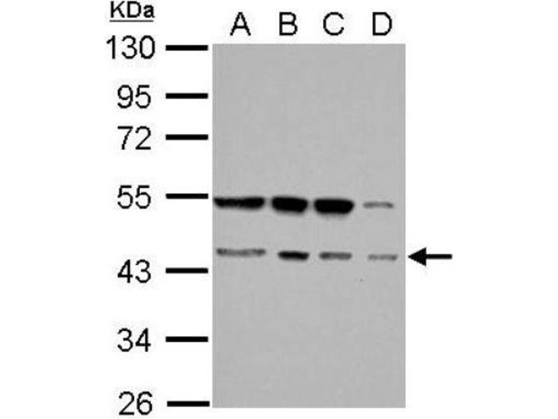 Western Blotting (WB) image for anti-RNA Binding Motif Protein 22 (RBM22) (Center) antibody (ABIN4349597)