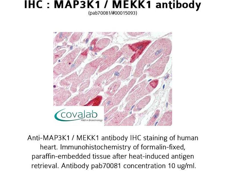 image for anti-MAP3K1 antibody (Mitogen-Activated Protein Kinase Kinase Kinase 1) (ABIN1736716)